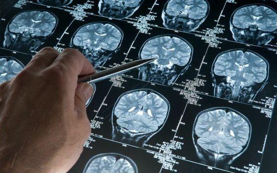 Vous trouverez ci-dessous une conférence TEDx donnée par Mark Mattson, l'actuel chef du laboratoire de neurosciences au National Institute on Aging. Il est également professeur de neurosciences à l'université Johns Hopkins, et l'un des plus éminents chercheurs dans le domaine des mécanismes cellulaires et moléculaires qui sous-tendent plusieurs maladies neurodégénératives, comme la maladie de Parkinson et la maladie …