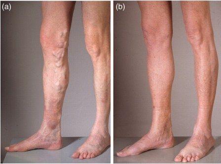 Natural Treatment For Venous Stasis Dermatitis