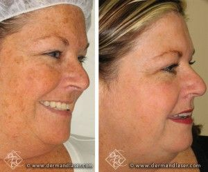 Photorejuvenation Treatments Reduce The Signs Of Aging By