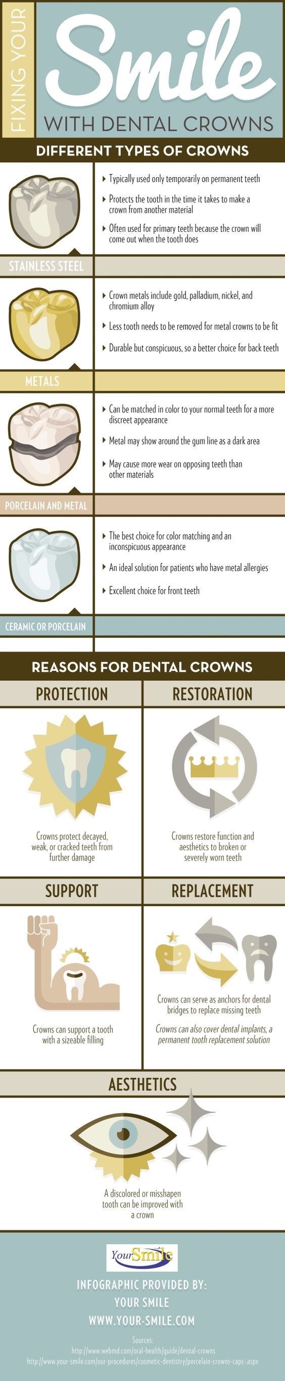 All about crowns
