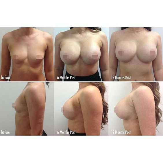 Breast Augmentation Progress pics! Before, 6 months and 12 Month post surgery…
