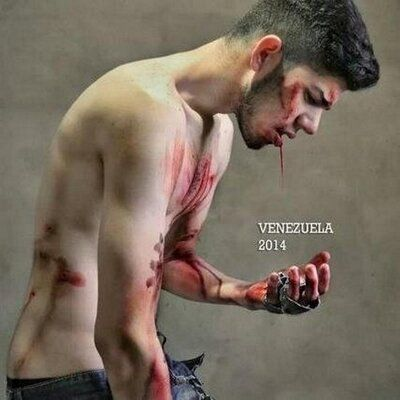 Venezuela is hemorrhaging ... SOS Necesitamos Ayuda....SOS