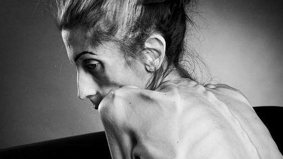 Una mujer con anorexia publica un vídeo en el que pide ayuda para superar la enfermedad   http://w.abc.es/gqe3hk