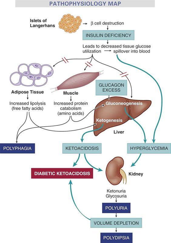 nursing case study diabetic ketoacidosis