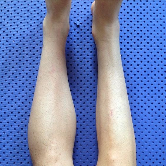 How To Build Up Calf Muscle After Cast