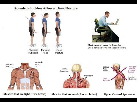 23+ Upper cross syndrome exercises ideas in 2021