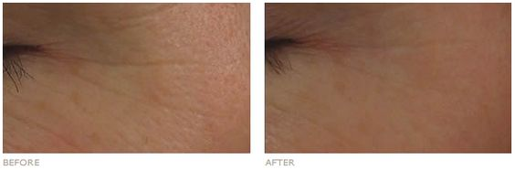 Before & After: Reduces the appearance of fine lines and wrinkles over time.
