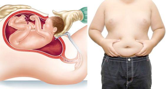 Uno studio pubblicato su Jama Pediatrics, afferma che una delle cause di obesità infantile sarebbe il taglio cesareo. Il meccanismo patologico vedrebbe implicato il microbiota intestinale dei neonati, alterato quando non si nasce per via vaginale. Alessio Biondino, Nurse Times.