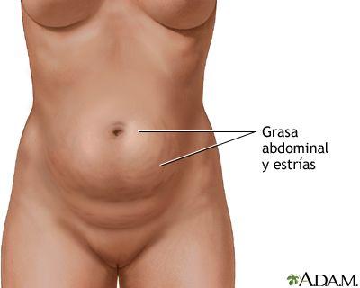 Cirugía de la pared abdominal