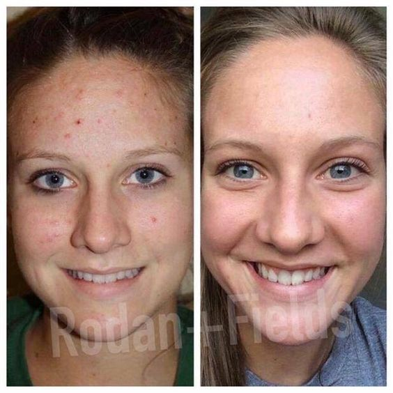 Confidence is PRICELESS!!!  How many people do you know that would benefit from an incredible transformation like this?  Not only can R+F help clear up your acne like it did for Allie, but it can overcome all your FEARS to become FOUNDATION FREE!  Your happiness is guaranteed 100%