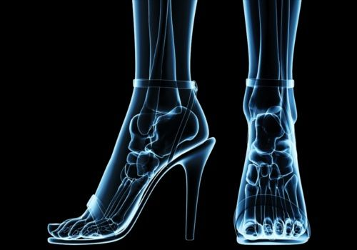 Interface: SAÚDE FÍSICA: A influência nos tipos de calçados