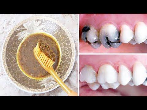 صدق او لا تصدق ازالة تسوس الاسنان والجير المتراكم نهائيا بدون حشو الاسنان Teeth Health Health Skin Care Homemade Remedies