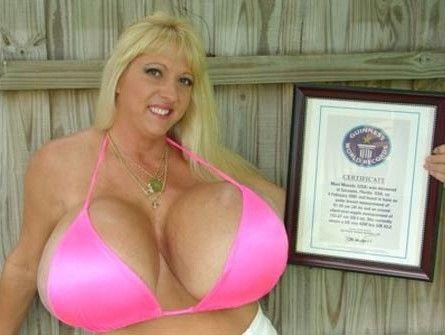 """Uma técnica de cirurgia de aumento de seios polêmica chamada de """"implante de cadeias de propileno"""" foi a única solução que satisfez a stripper de nome artístico Maxi Mounds ou """"Grandes Montes"""". Maxi é a mulher que tem maior peito do mundo."""