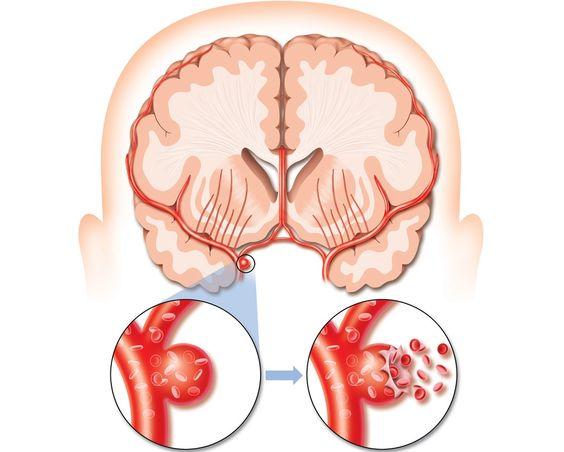 CLIQUE AQUI! Quais os sinais e sintomas do avc hemorragico Responsável por milhares de mortes no mundo todo, o AVC Hemorrágico, popularmente conhecido por Derrama Cerebral, mata mais de cem mil pessoas por a... http://saudenocorpo.com/quais-os-sinais-e-sintomas-do-avc-hemorragico/