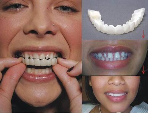 rosy lips and pretty white teeth REMOVABLE DENTAL VENEER