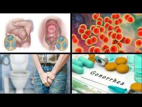 هل تعاني من حرقان في البول مع خروج قيح او صديد إنتبه إنه مرض السيلان Gonorree Youtube Youtube