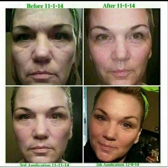Using a facial wrap; Contact me now, pocahontassmith10@gmail.com OR DM me :) #wls #wlsfamily #weightloss #fat2fit #fattofit #fitfam #weightlosssurgery #bbw #healthyeating #wlsfood #fitspo #wls #wlscommunity #teamwls #myweightlossjourney  #weightwatchers #weightloss #diet #dedication #determined #motivation #fat2slim #fitness #change #healthy #lifestyle #transformation #weightlossjourney #slimmingdown  #fitspiration #fitstagram #goals