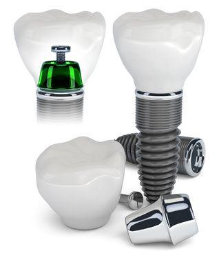 Maßgeschneiderte #Implantat-körper vom #Zahnarzt: http://www.zahn-implantate-berlin.de/deutsch/news/implantatkoerper_nach_dem_vorbild_der_natur.html
