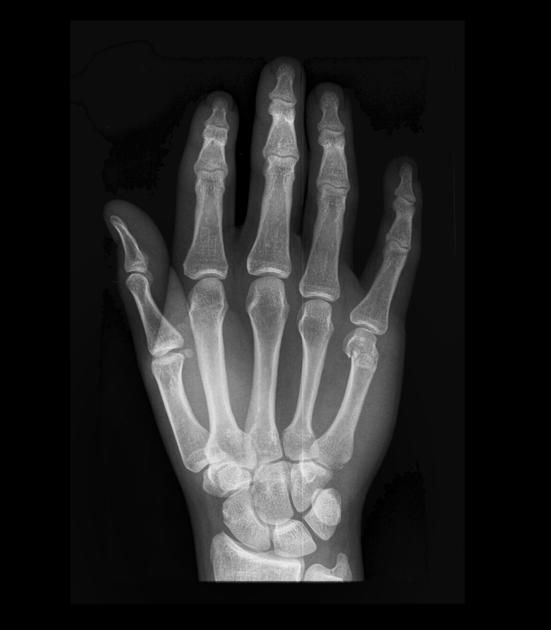X Ray Broken Hand The necks, Tables and ...