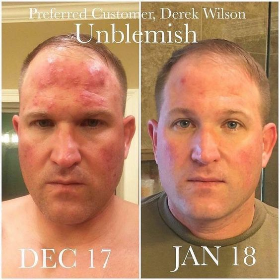 Yes Men Use Rodan And Fields Unblemish To The Rescue Acne Be Gone Acne Menacne Maleacne Unblemis Rodan And Fields Rodan And Fields Consultant Unblemish