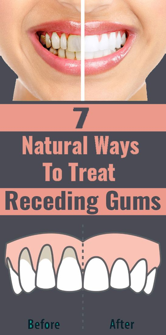 Reverse Gum Recession Naturally With Home Remedies Receding Gums Dental Health Health Activities