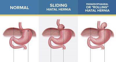 How To Treat Hiatal Hernia With Simple Home Remedies Hiatal