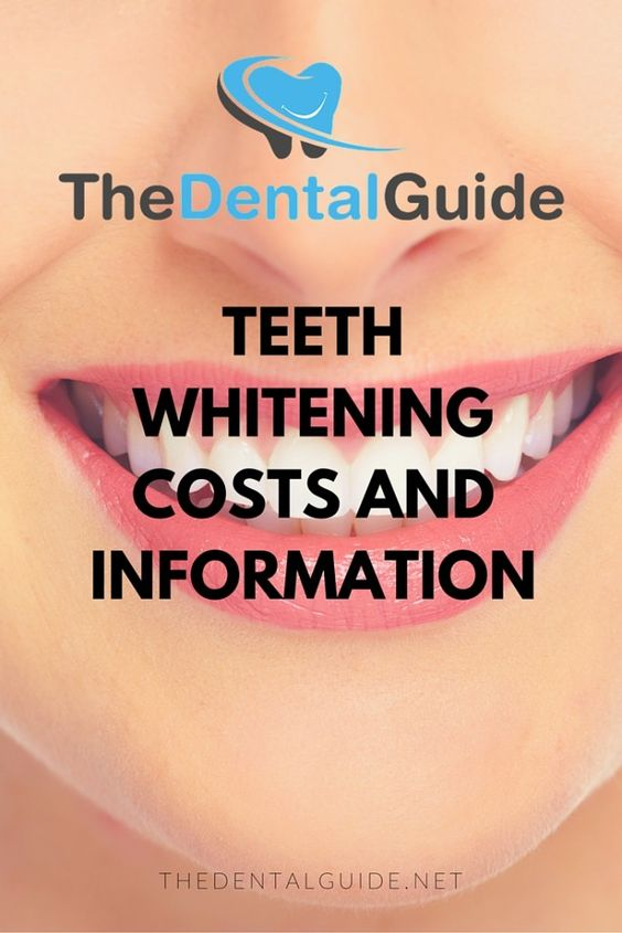 Teeth Whitening Costs and Information - The Dental Guide