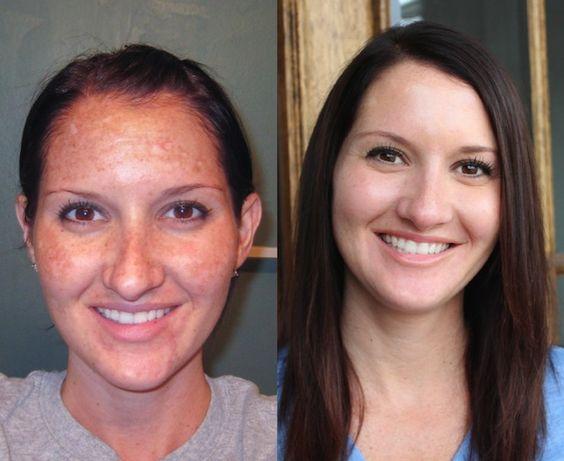 My Skin Transformation Before Amp After Obagi Medical