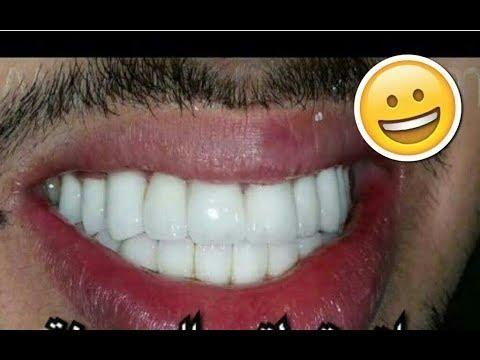 الفازلين لتبييض الاسنان تبييض الاسنان بسرعة لن تصدق ذلك