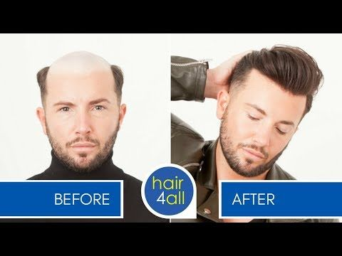 Before After Hair System Non Surgical Hair Replacement