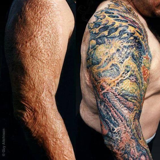 tatuajes para cubrir cicatrices