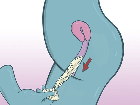 Female condom 12 photos http humorable org how to use a female