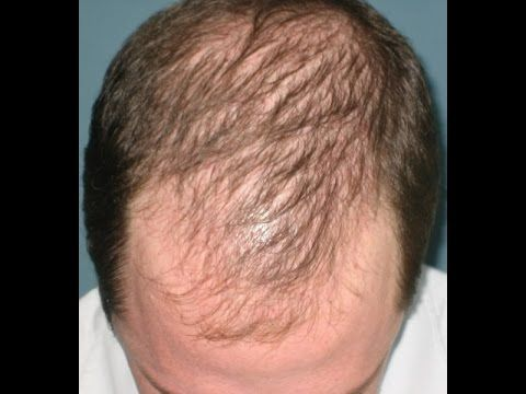 Hair Loss Facts With Images Hair Loss Remedies Help Hair Loss Androgenetic Alopecia