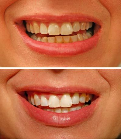 Some tips for keeping teeth white and bright include cutting down on coffee, wine or dark spaghetti sauces. Learn how to maintain white teeth with information from a dental hygienist in this free video on oral hygiene and teeth whitening.