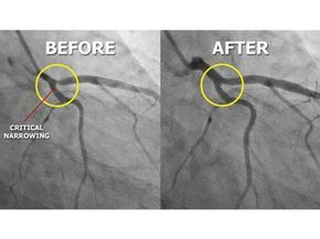 Arteries before and after five months on a minimally-processed whole foods plant-based diet. Read Prevent and Reverse Heart Disease by Caldwell B. Esselstyn M.D.