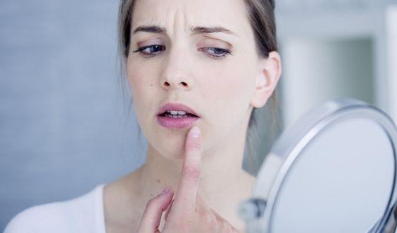 10 astuces pour soigner rapidement un bouton de fièvre