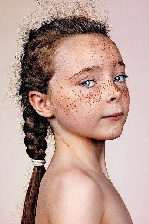 Diese Portr�ts zeigen, wie wundervoll es ist Sommersprossen zu haben