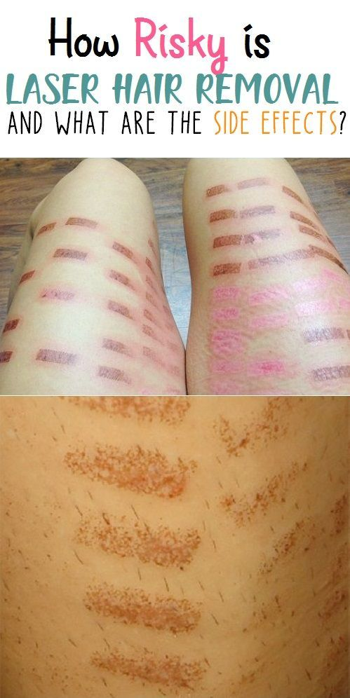 How Risky Is Laser Hair Removal What Are The Side Effects Laser Hair Removal Laser Hair Electrolysis Hair Removal