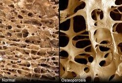 What is the difference between osteoporosis & osteoarthritis? here are some answers.
