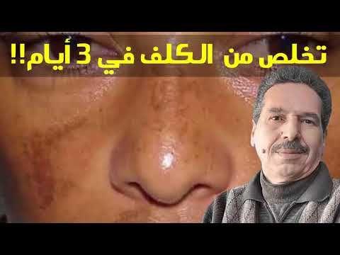 البشرة الجافة و الكلف الحل النهائي في ثلات أيام من الإستعمال الدكتور جمال الصقلي Youtube Movie Posters Movies