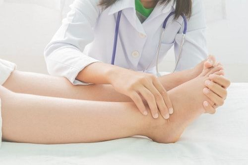 اسباب تورم القدمين عند النساء