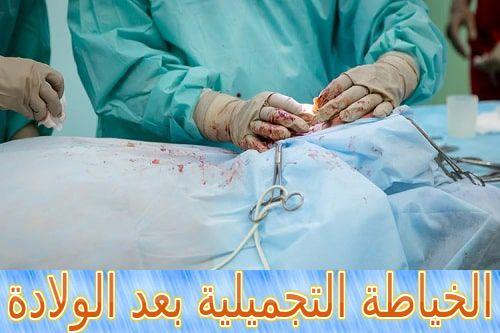 الخياطة التجميلية بعد الولادة متى تكون ضرورية Plastic Surgery Surgery