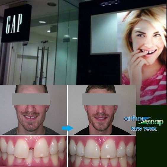 how to close teeth gaps without braces
