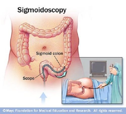 Difference Between Homeopathy Treatment Microscopic Colitis Sigmoid Colon