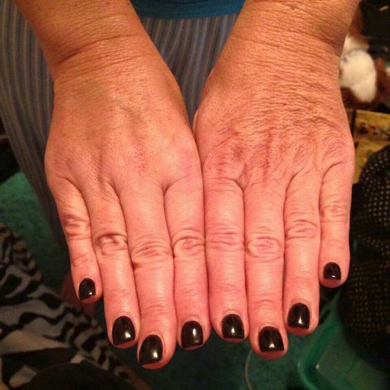Almost 4 weeks ago, Tracy Fisher started using the hand brightening treatment on her right hand only. She was going to wait 60 days to post, but her left hand is looking so old, she doesn't want wait any longer to start using it on both hands!  Our hand cream is AMAZING!!! You'll LOVE it! Contact me to get started!