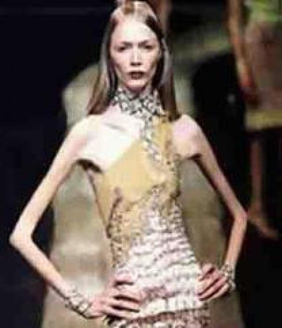 Anorexic Model 38