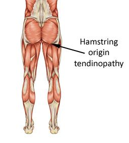 Hamstring origin tendinopathy is sometimes also called proximal or high hamstring tendonitis. It is a degenerative condition of the hamstring tendon below the bum