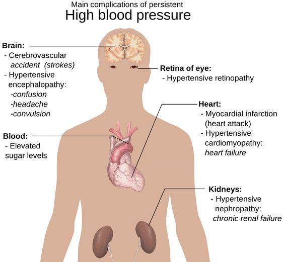 ต้นเหตุของโรคความดันสูง
