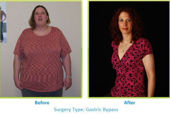 how to lose weight before gastric bypass surgery