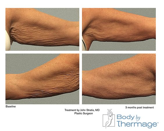 Before And After Body By Thermage Arms Thermage